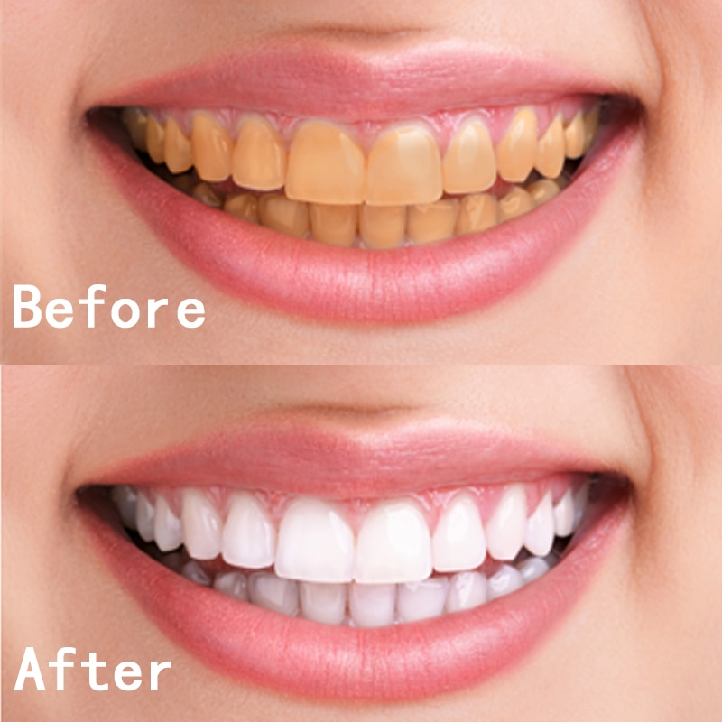 Whiter Image Teeth Before & After