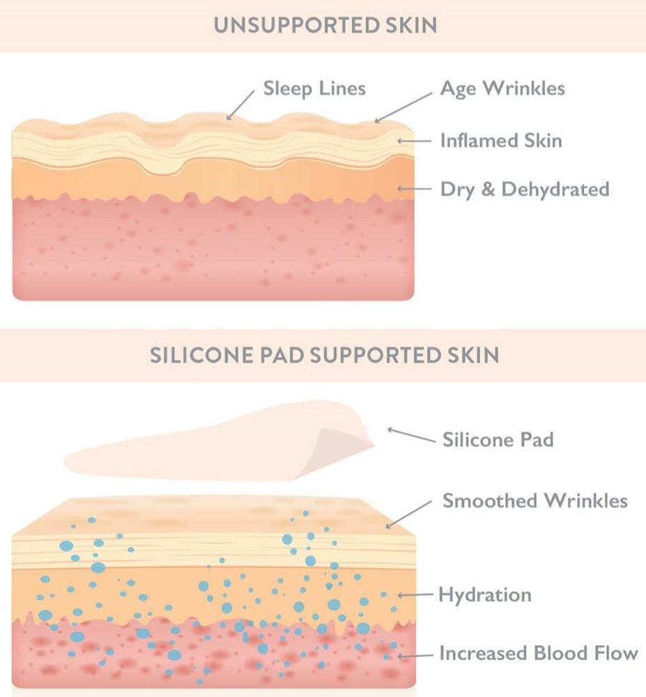 Wrinkles Schminkles Results
